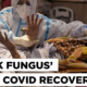 Black Fungus Infection is seen in Covid Patients